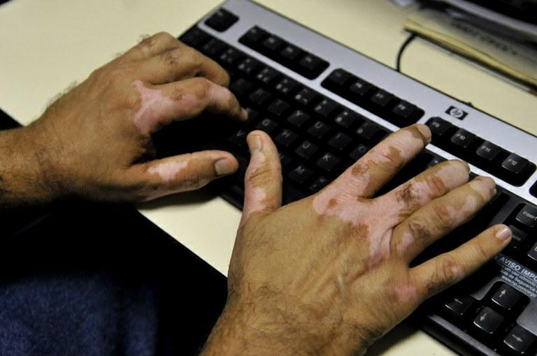 Fatores emocionais podem desencadear ocorrência do vitiligo